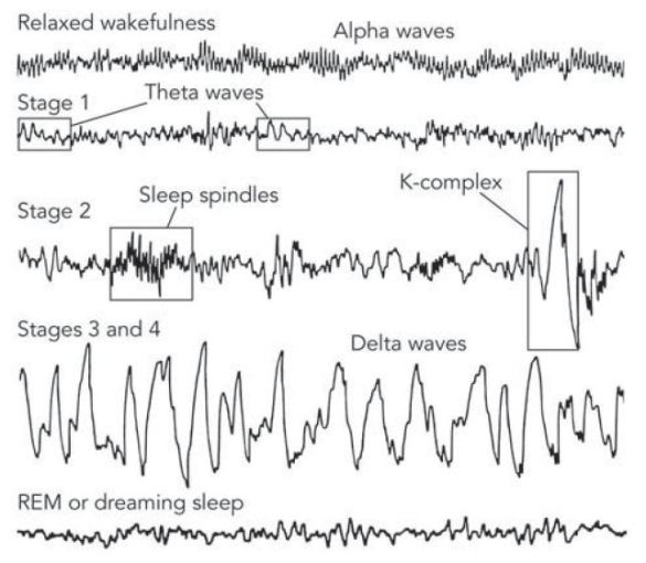 Brain Wave Patterns During Sleep